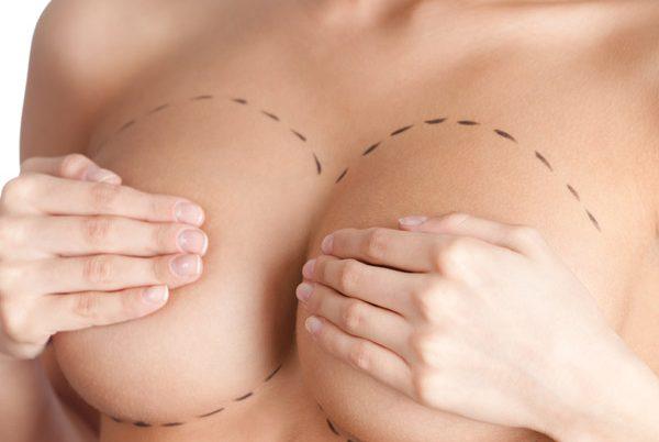 Mamoplastia redutora – Cirurgia plástica das mamas – Vitória – ES.