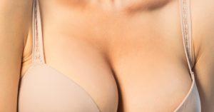 Mitos e verdades da mamoplastia de aumento.